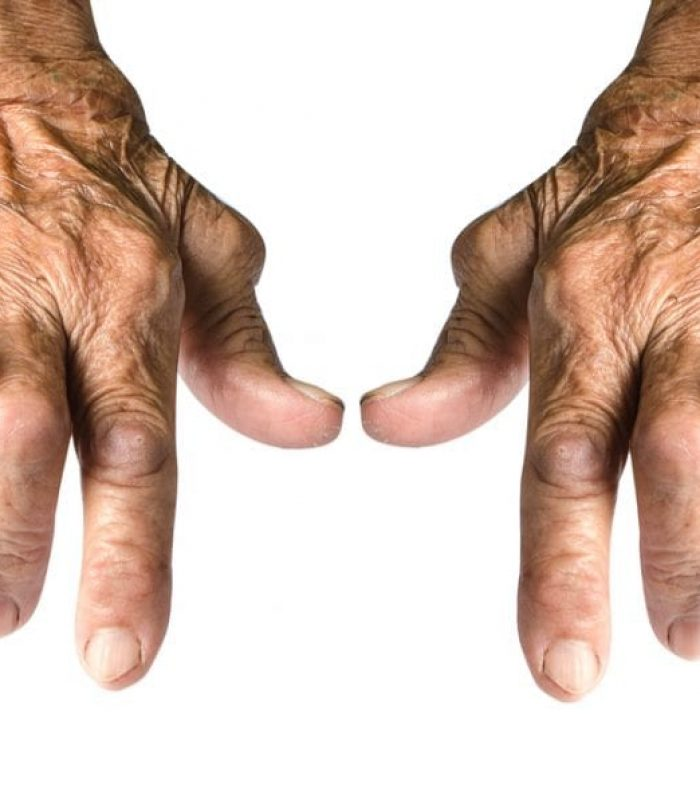 Patients Report: Cannabis Handles Arthritis Like a Boss