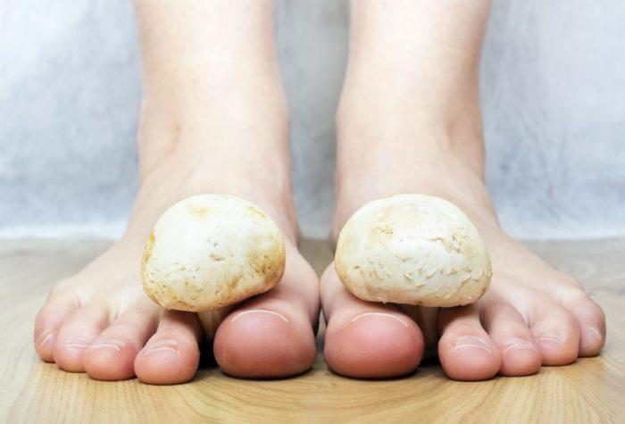 Will Cannabis Kill That Nasty Toe Fungus?