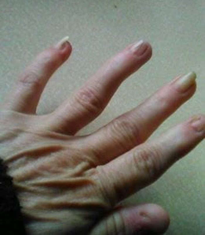 Cannabis Soothes the Constant Pain of Nail Patella Syndrome