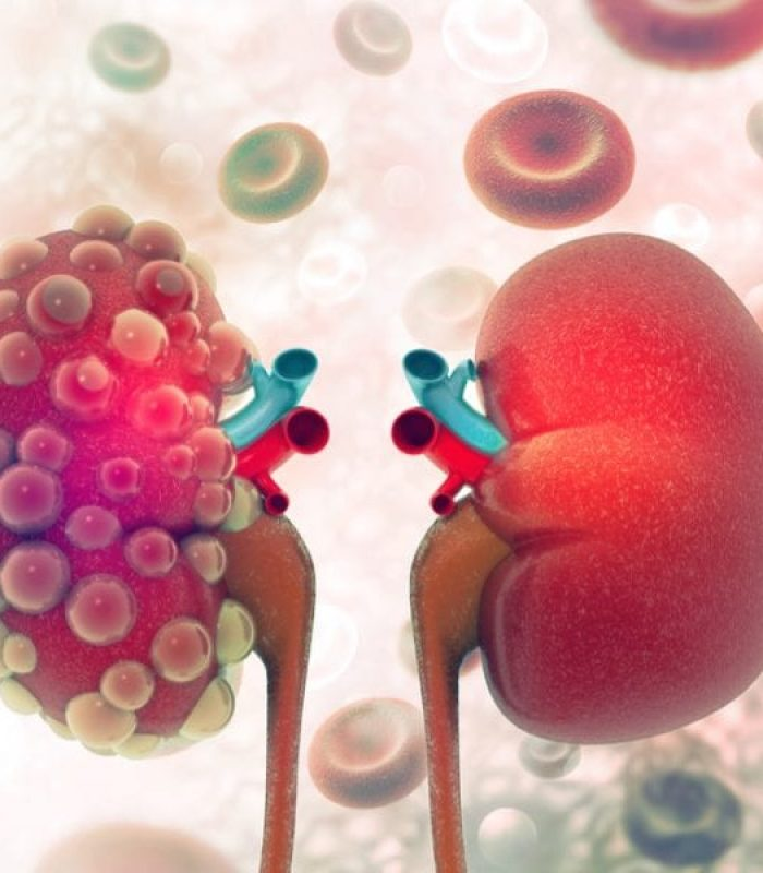 CBD Protects Kidney Health in Mice