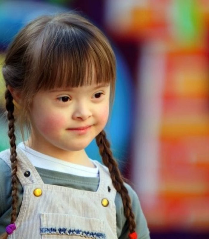 Pre-Clinical Study on Cannabis for Cognitive Symptoms of Down Syndrome