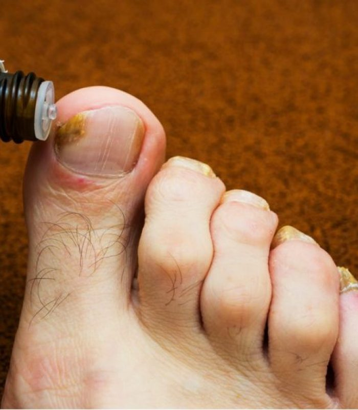 CBD And Toe Fungus?