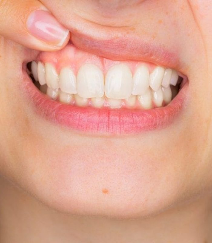 Gum Disease Is More Common In Smokers - Even For Cannabis