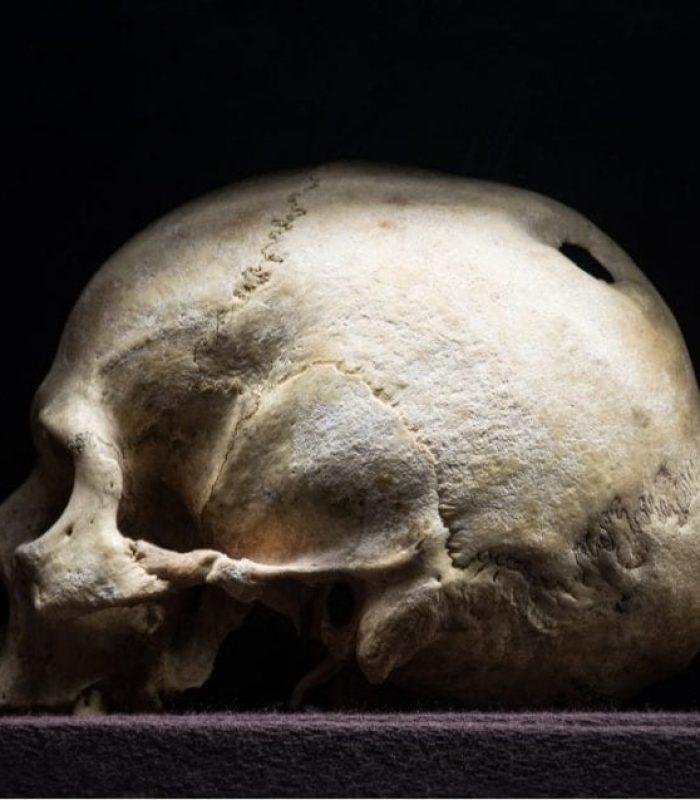 Ancient Cannabis And Primitive Brain Surgery